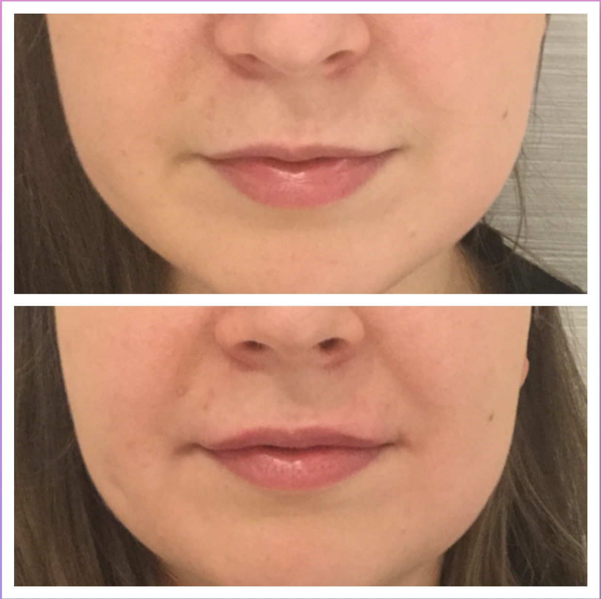 Facial Fillers - Skin & Laser Clinic